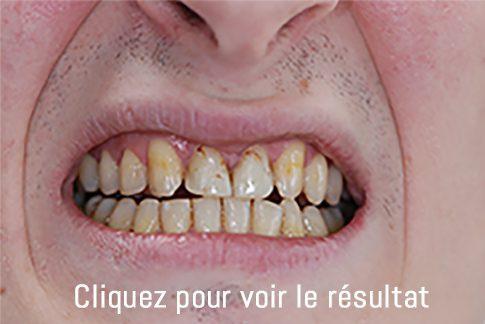 dents avant intervention