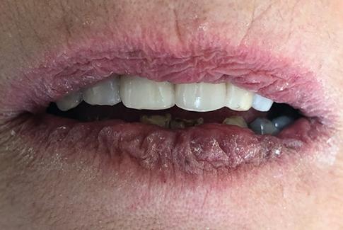 expert dentiste echallens