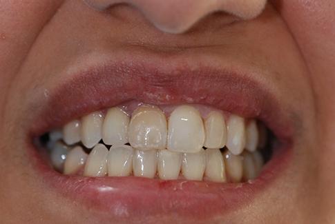 expert dentiste lausanne